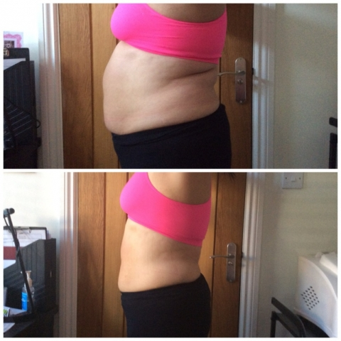 BEfore and after laser lipo at Cheshire Aesthetic Clinic, Chester