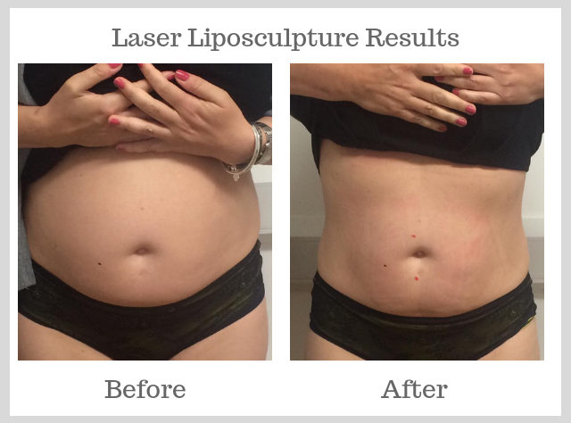 before laser lipo and after laser lipo images showing visible reduction in size of the stomach