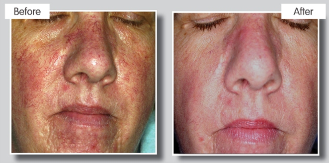 IPL Acne treatment results at Cheshire Aesthetic Clinic, Chester