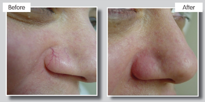 IPL Thread Vein treatment results at Cheshire Aesthetic Clinic, Chester