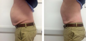 client results of laser lipo treatment