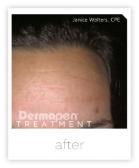 forehead after a dermapen treatment