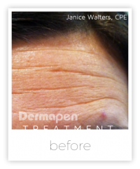 forehead before a dermapen treatment