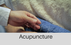 chinese medical acupuncture at beehive healthcare chester