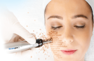 microneedling dermapen treatment